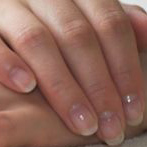 A Natural Cure for Brittle Nails